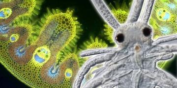 mikro organisme 360x180 - Genius - genius Hebat yang Dieksploitasi Hidup Mereka
